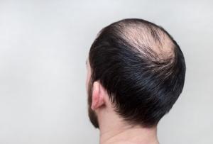 shampo penumbuh rambut,penumbuh rambut,obat penumbuh rambut
